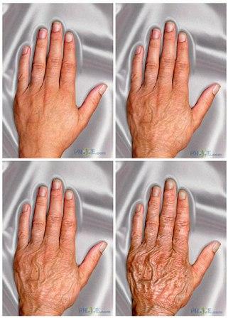 hand age progression