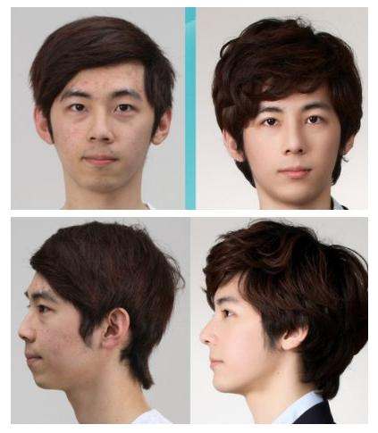 korean plastic surgery viewmixedcom