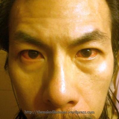 bloodshot eyes thenakedlistener 2014 0914 DSC4328
